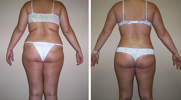 Can u take garcinia cambogia after eating picture 6